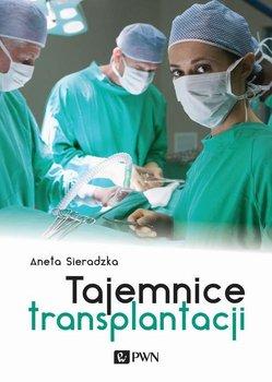 Tajemnice transplantacji - Sieradzka Aneta