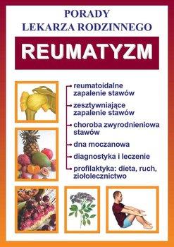 Reumatyzm. Porady lekarza rodzinnego - Opracowanie zbiorowe